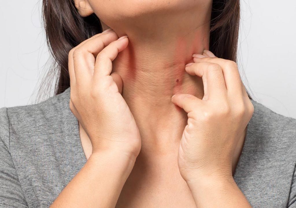 Standard Allergy Skin Test IL - Skin Testing